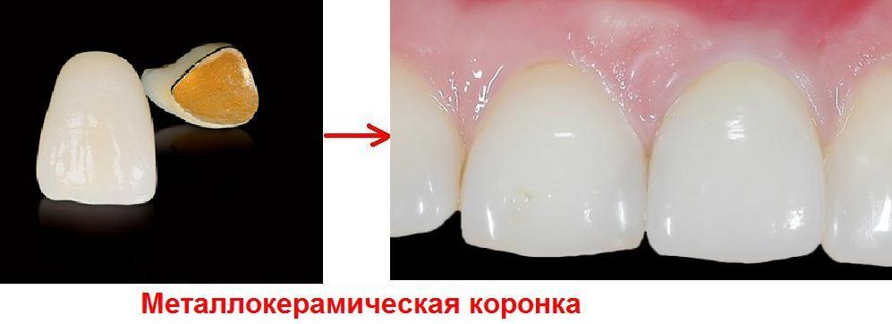 За сколько ставят коронку на зуб